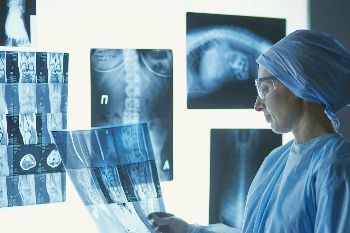 Two female women medical doctors looking at x-rays in a hospita